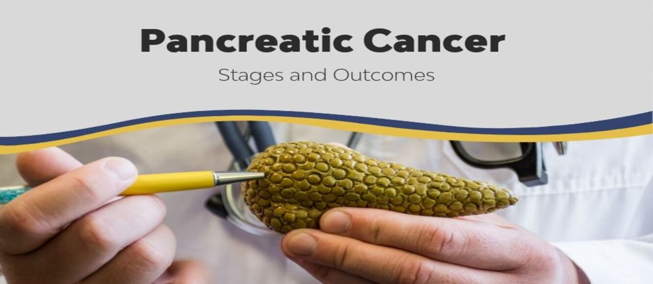 Pancreatic Cancer: Stages and Outcomes | Advanced Cancer